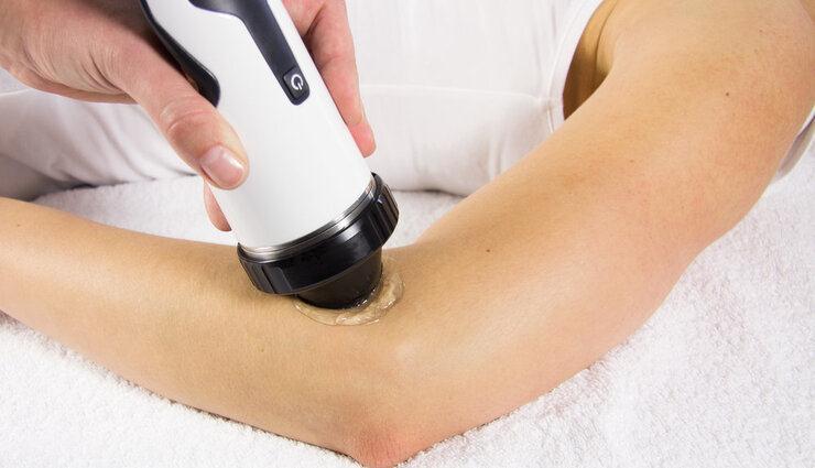 درمان تنیس البو و گلف البو با استفاده از شاکویو تراپی