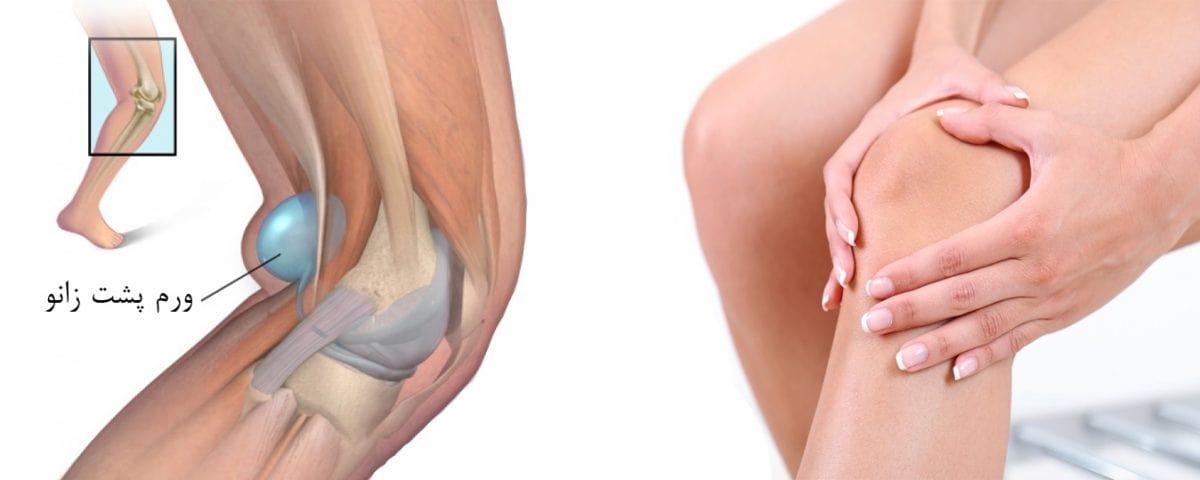 درمان ورم پشت زانو (کیست بیکر) بدون جراحی