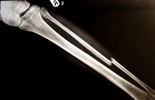 شکستگی استخوان پا چگونه تشخیص داده میشود؟