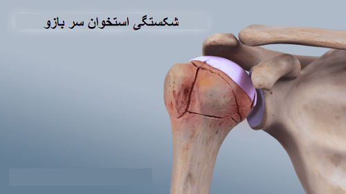 شکستگی استخوان پروگزیمال سر بازو
