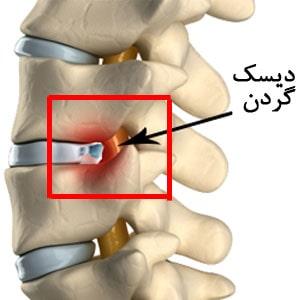 علائم دیسک گردن و درمان