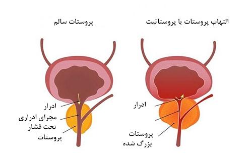 پروستاتیت غیر باکتریایی