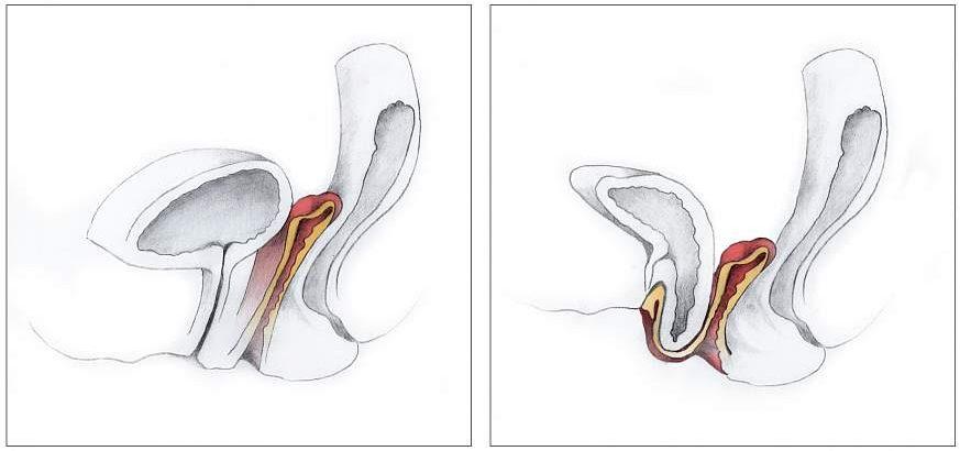 درمان افتادگی لگن در زنان و مردان با فیزیوتراپی و حرکات اصلاحی