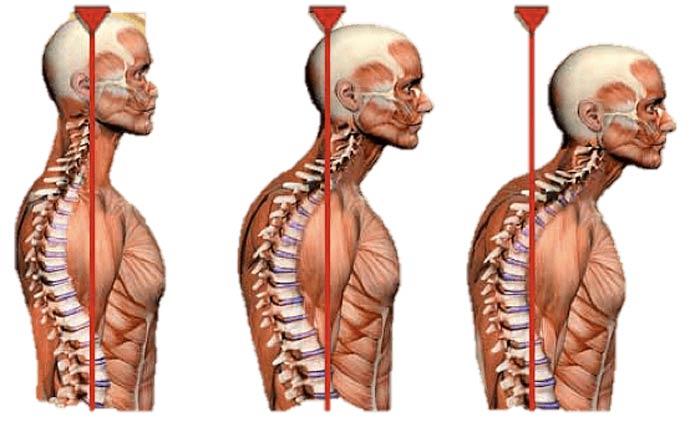 درمان قوس گردن