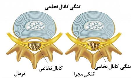 تنگی کانال نخاعی ناحیه گردن